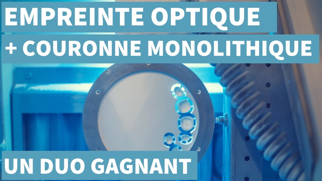 Empreinte Optique & Restaurations Monolithiques : Un Duo Gagnant