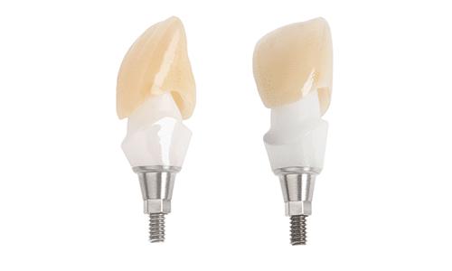AnA. pilier implantaire anatomique sur mesure