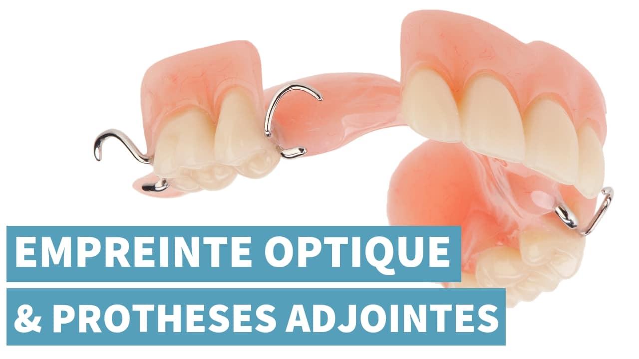 Prise D'empreinte Optique & Prothèses Adjointes En 2019
