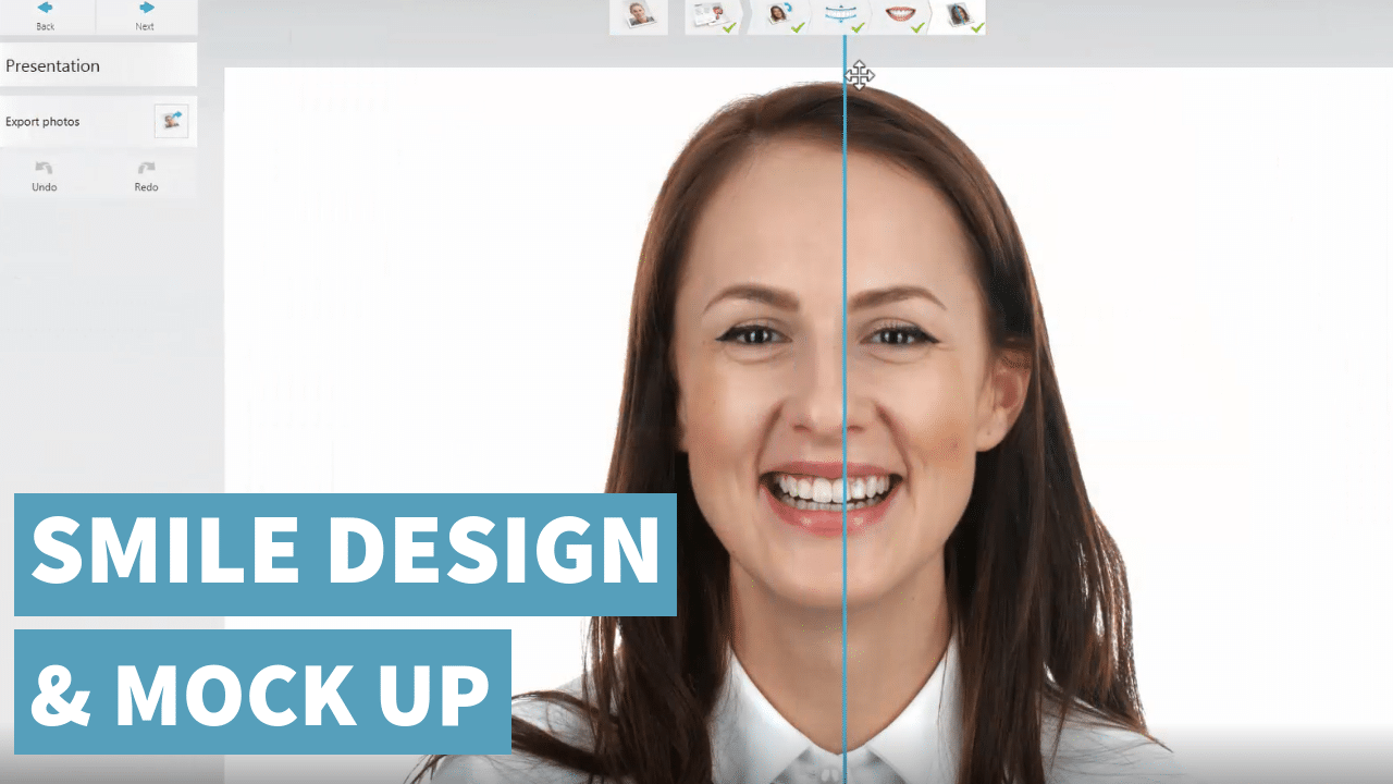 Smile Design & Mock Up