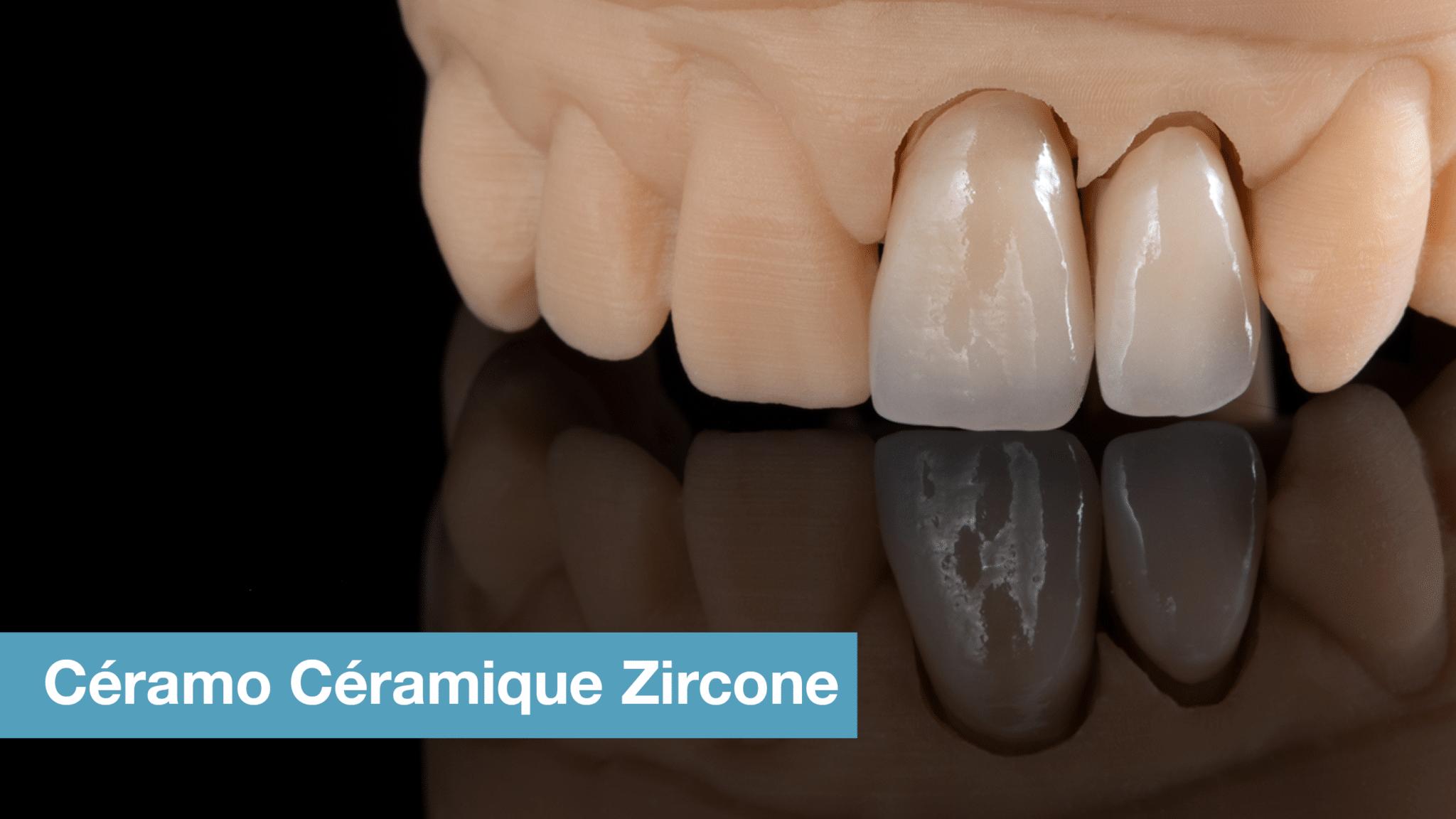 Couronne Ceramo Ceramique Zircone