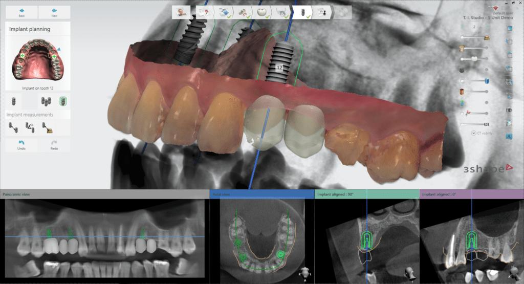 3Shape Implant Planner 2019_implant planning 1